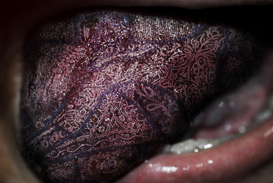 birthmark1.jpg